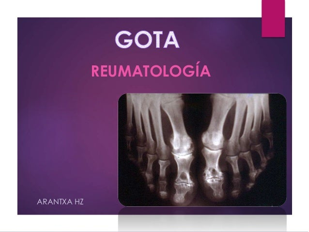REUMATOLOGÍA  A  ARANTXA HZ