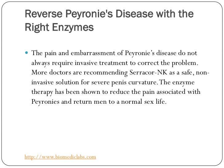 What Is Reverse Peyronie S Disease