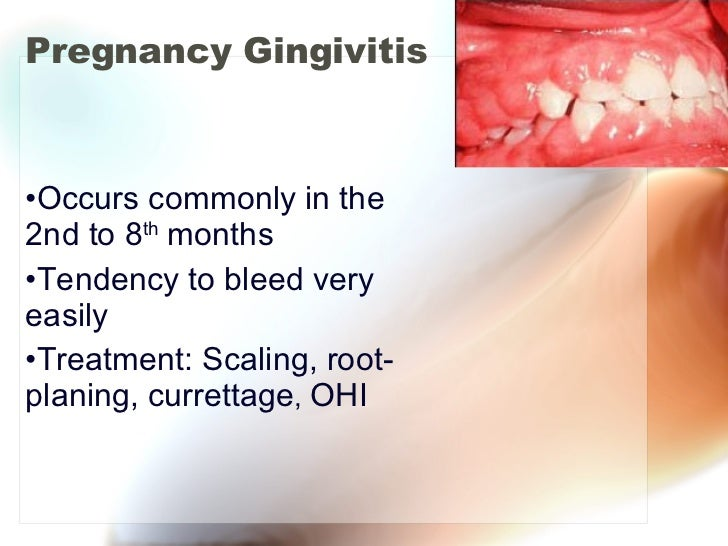 Pregnancy Gingivitis <ul><li>Occurs commonly in the 2nd to 8 th  months </li></ul><ul><li>Tendency to bleed very easily </...