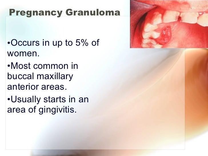 Pregnancy Granuloma <ul><li>Occurs in up to 5% of women. </li></ul><ul><li>Most common in buccal maxillary anterior areas....