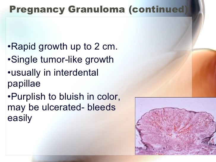 Pregnancy Granuloma (continued) <ul><li>Rapid growth up to 2 cm. </li></ul><ul><li>Single tumor-like growth </li></ul><ul>...