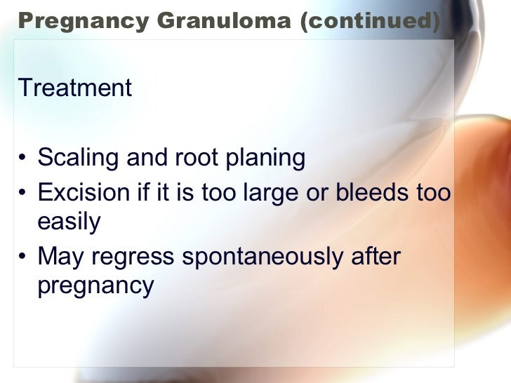 Pregnancy Granuloma (continued) <ul><li>Treatment </li></ul><ul><li>Scaling and root planing </li></ul><ul><li>Excision if...