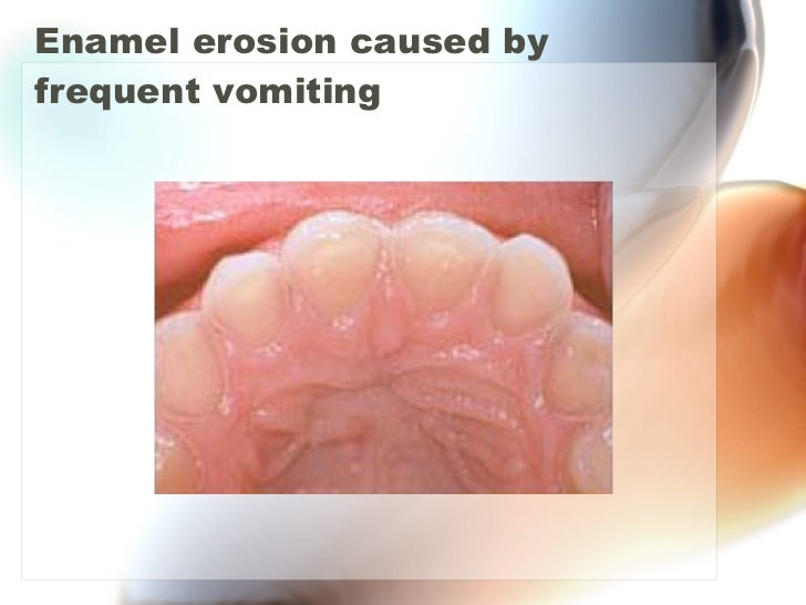 Enamel erosion caused by frequent vomiting