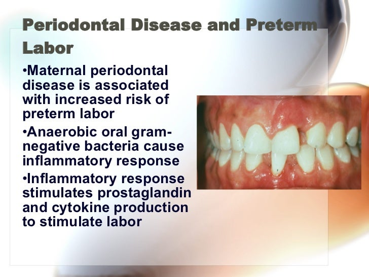 Periodontal Disease and Preterm Labor <ul><li>Maternal periodontal disease is associated with increased risk of preterm la...
