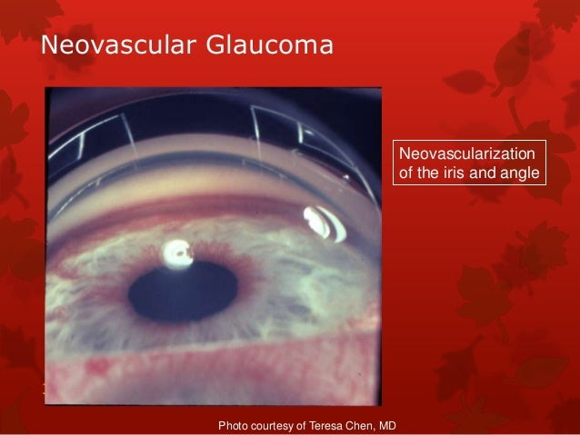 Review of angle closure glaucomas, By Fritz Allen, MD