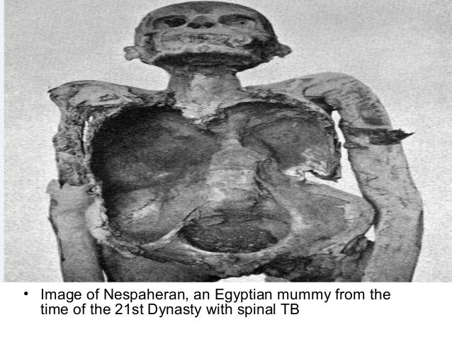 The secrets of the Luxor mummies revealed