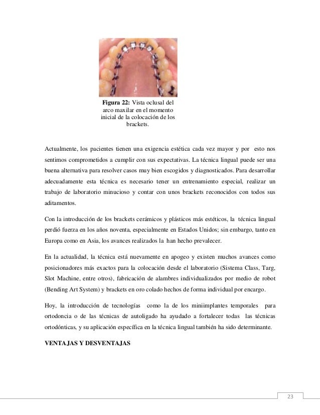 23 Figura 22: Vista oclusal del arco maxilar en el momento inicial de la colocación de los brackets. Actualmente, los paci...