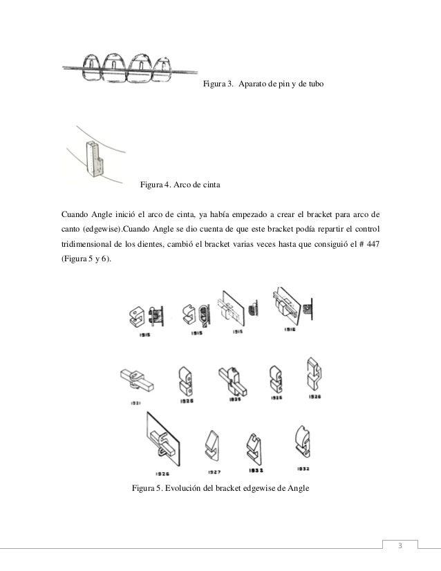 3 Figura 3. Aparato de pin y de tubo Figura 4. Arco de cinta Cuando Angle inició el arco de cinta, ya había empezado a cre...
