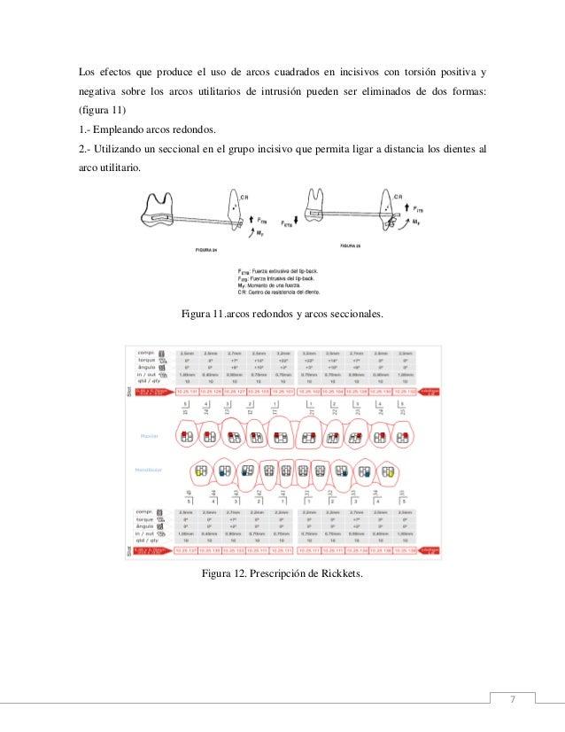 7 Los efectos que produce el uso de arcos cuadrados en incisivos con torsión positiva y negativa sobre los arcos utilitari...