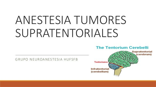 ANESTESIA TUMORES SUPRATENTORIALES  GRUPO NEUROANESTESIA HUFSFB
