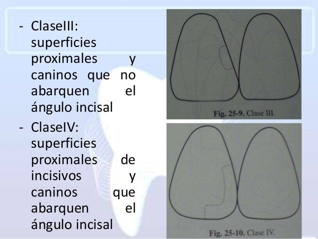 - ClaseIII:  superficies  proximales       y  caninos que no  abarquen        el  ángulo incisal- ClaseIV:  superficies  p...