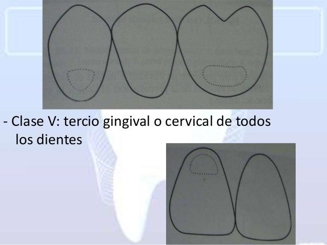 - Clase V: tercio gingival o cervical de todos   los dientes
