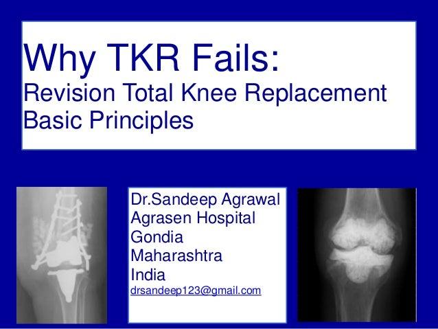 1 Why TKR Fails: Revision Total Knee Replacement Basic Principles Dr.Sandeep Agrawal Agrasen Hospital Gondia Maharashtra I...