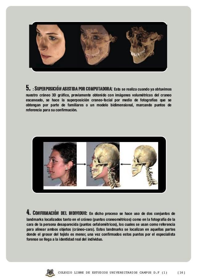 Revista reconstrucción facial