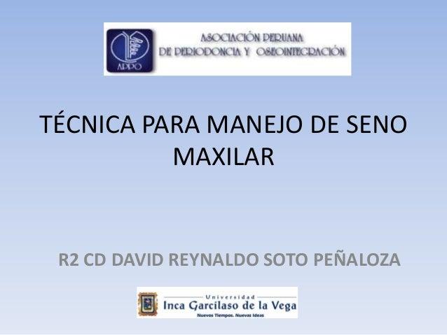 TÉCNICA PARA MANEJO DE SENOMAXILARR2 CD DAVID REYNALDO SOTO PEÑALOZA