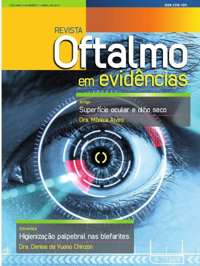 ISSN: 0000-0000VOLUME 3 � NÚMERO 1 � �ANEIRO DE 2013VOLUME 2 � NÚMERO 1 � ABRIL DE 2013 em evidênciasvidên Oftalmo Superfí...