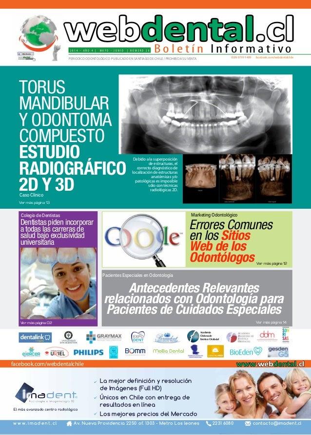 2 0 1 4 - A ñ o 4 | M A Y O - J U N I O | N ú m e r o 2 8 issn 0719-1499 facebook.com/webdentalchilePERIODICO ODONTOLÓGICO...