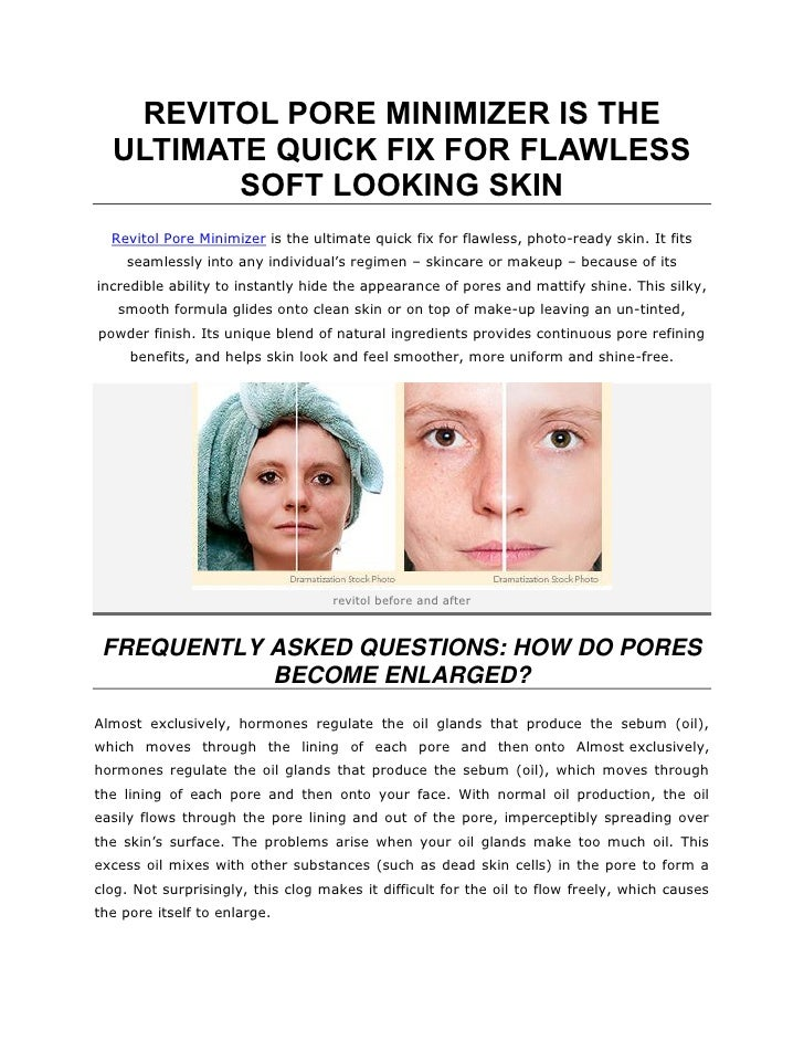 REVITOL PORE MINIMIZER IS THE  ULTIMATE QUICK FIX FOR FLAWLESS         SOFT LOOKING SKIN  Revitol Pore Minimizer is the ul...