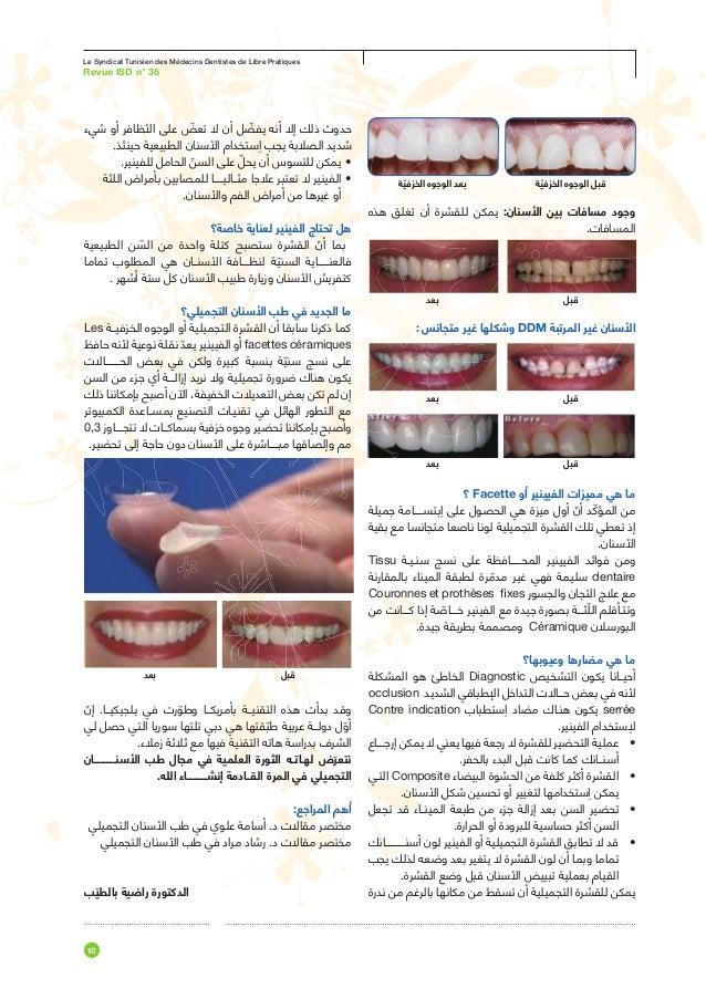 ProofPDF 72 DPILe Journal du     DentisteC linique                                            Cas clinique: prothèse vissé...