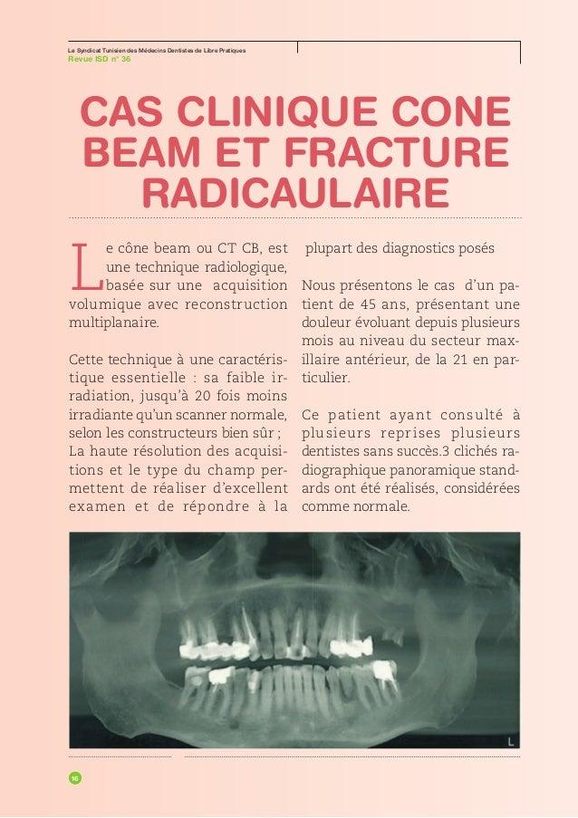 Le Syndicat Tunisien des Médecins Dentistes de Libre PratiquesRevue ISD n° 36SPÉCIALLUMIÈREVoir ce que l'on fait :        ...