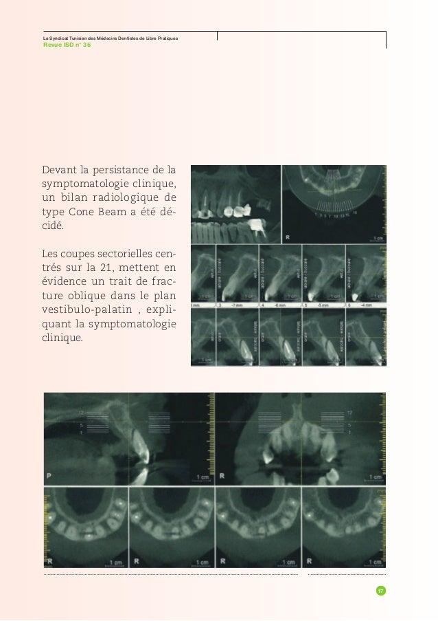 Le Syndicat Tunisien des Médecins Dentistes de Libre PratiquesRevue ISD n° 36scialytique directement dans les yeux        ...