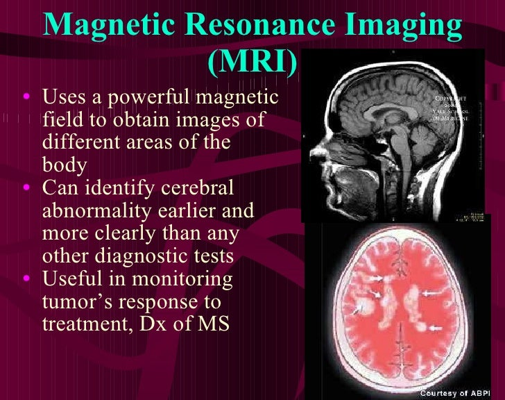 Magnetic Resonance Imaging (MRI) <ul><li>Uses a powerful magnetic field to obtain images of different areas of the body </...