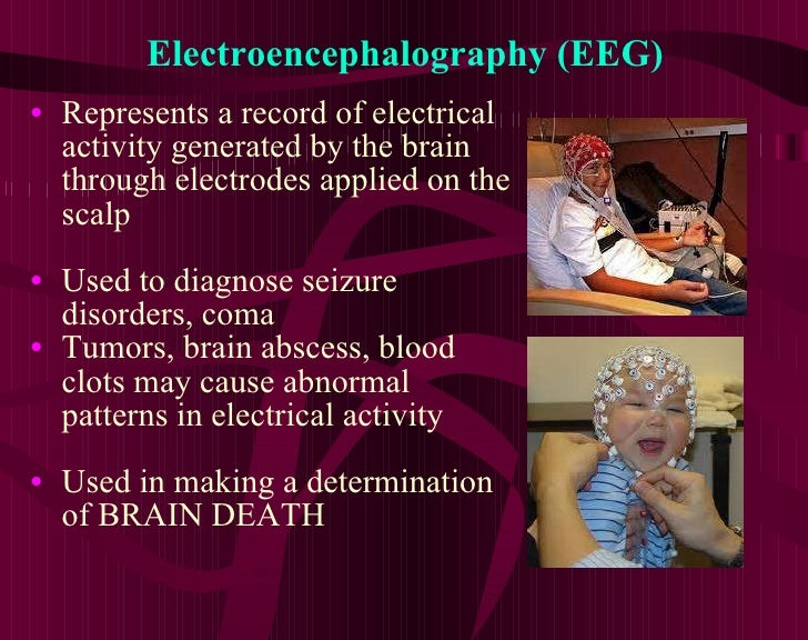 Electroencephalography (EEG) <ul><li>Represents a record of electrical activity generated by the brain through electrodes ...