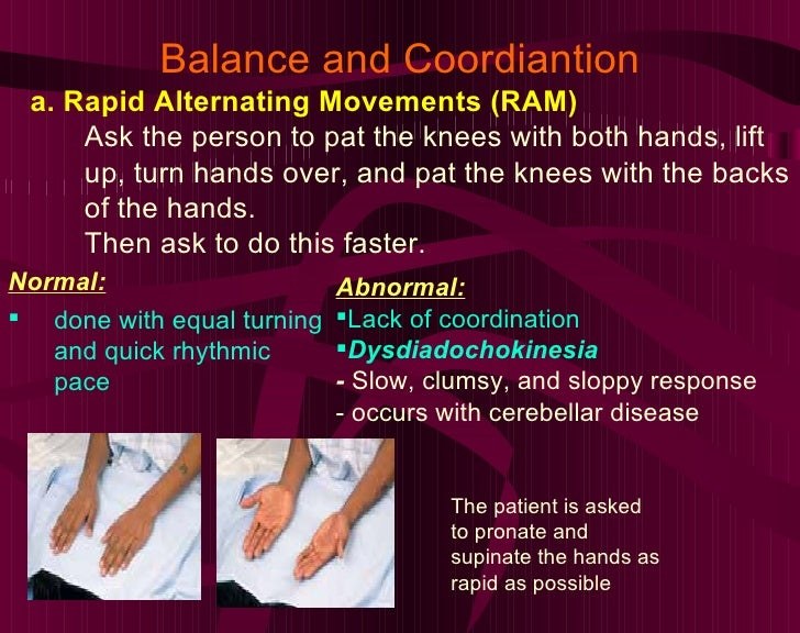 Balance and Coordiantion a. Rapid Alternating Movements (RAM) Ask the person to pat the knees with both hands, lift up, tu...