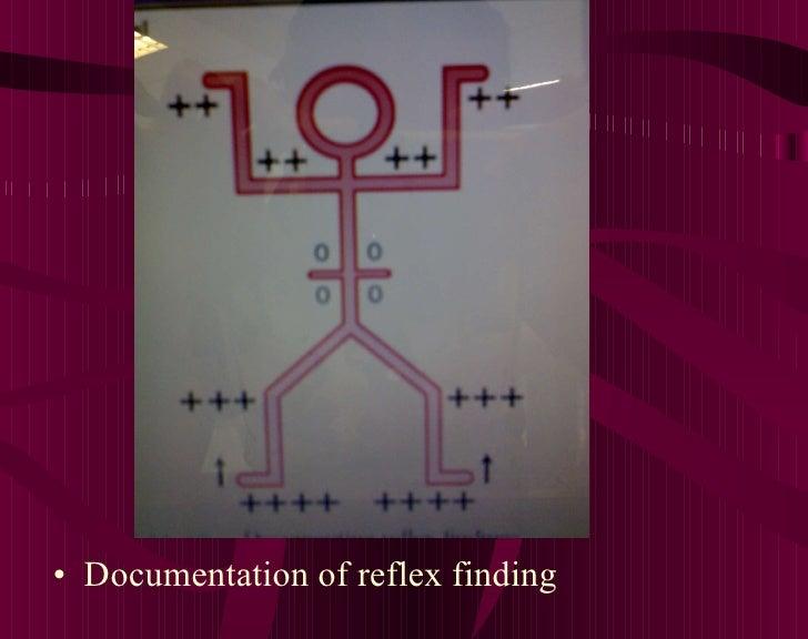 <ul><li>Documentation of reflex finding </li></ul>