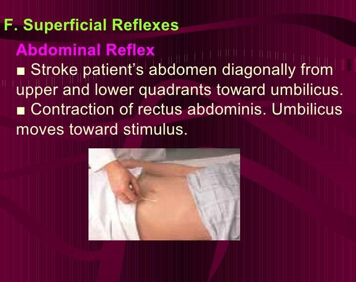F. Superficial Reflexes Abdominal Reflex ■  Stroke patient's abdomen diagonally from upper and lower quadrants toward umbi...