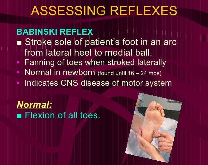 ASSESSING REFLEXES <ul><li>BABINSKI REFLEX </li></ul><ul><li>■  Stroke sole of patient's foot in an arc from lateral heel ...