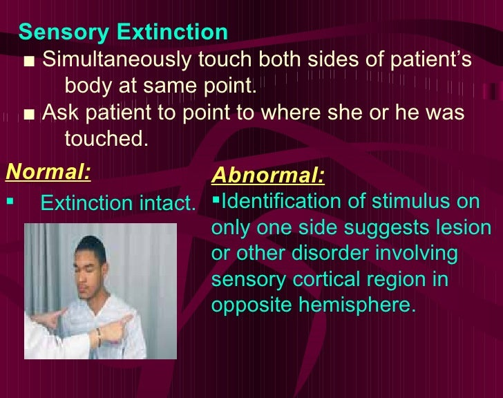 Sensory Extinction ■  Simultaneously touch both sides of patient's    body at same point. ■  Ask patient to point to where...
