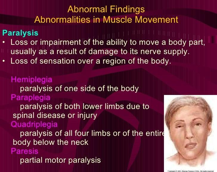Abnormal Findings Abnormalities in Muscle Movement <ul><li>Paralysis </li></ul><ul><li>Loss or impairment of the ability t...