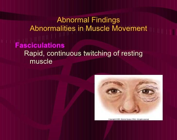 Abnormal Findings Abnormalities in Muscle Movement <ul><li>Fasciculations </li></ul><ul><ul><li>Rapid, continuous twitchin...
