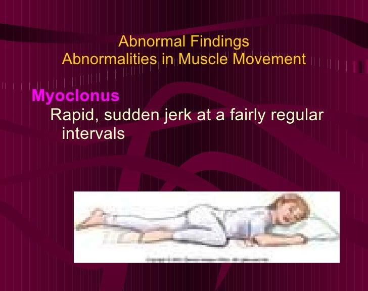 Abnormal Findings Abnormalities in Muscle Movement <ul><li>Myoclonus </li></ul><ul><ul><li>Rapid, sudden jerk at a fairly ...