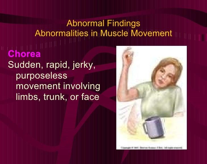 Abnormal Findings Abnormalities in Muscle Movement <ul><li>Chorea </li></ul><ul><li>Sudden, rapid, jerky, purposeless move...