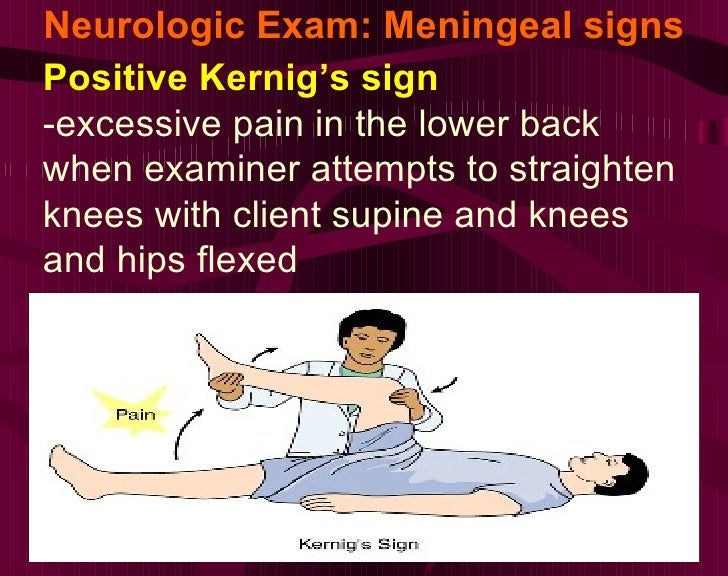 Neurologic Exam: Meningeal signs Positive Kernig's sign -excessive pain in the lower back when examiner attempts to straig...