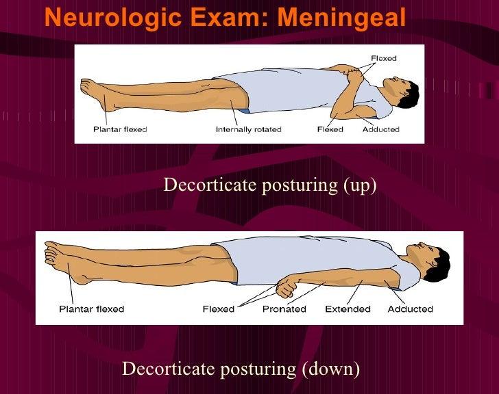 Neurologic Exam: Meningeal <ul><ul><ul><li>Decorticate posturing (up) </li></ul></ul></ul><ul><ul><ul><li>Decorticate post...