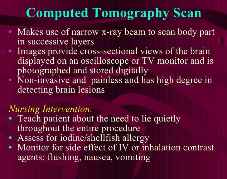 Computed Tomography Scan <ul><li>Makes use of narrow x-ray beam to scan body part in successive layers </li></ul><ul><li>I...