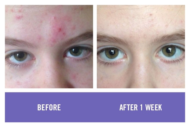 Rodan Fields Before And After Photos 2015