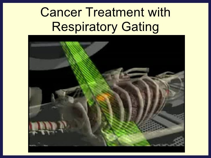 Cancer Treatment with Respiratory Gating