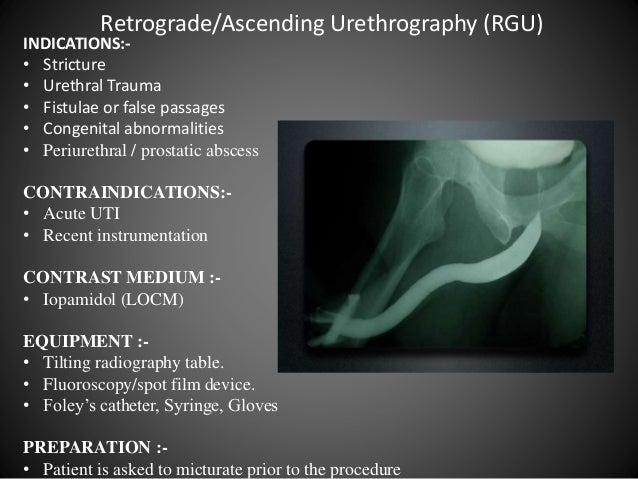 retrograde urethrogram