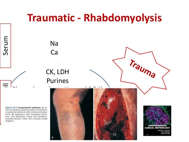 rhabdomyolysis - form pathogenesis to bedside, Skeleton