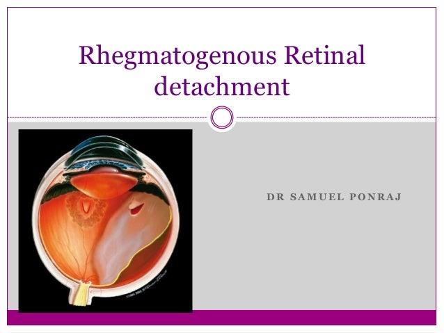 Rhegmatogenous retinal detachment