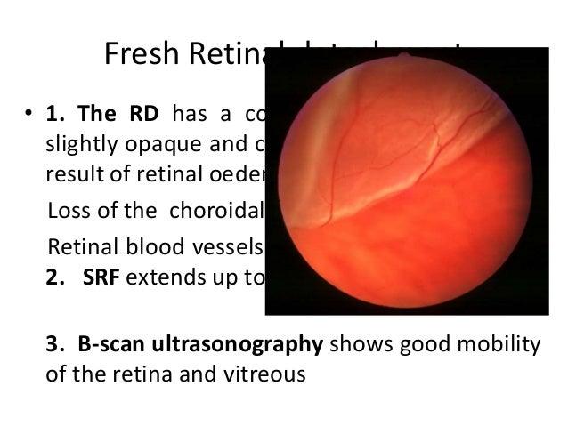 Rhegmatogenous retinal detachment (rrd)