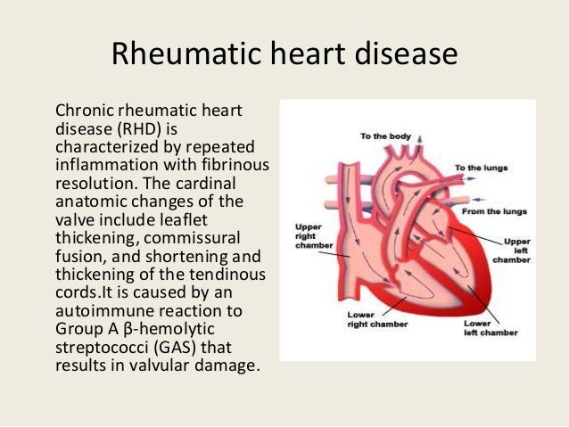 rheumatic heart disease Rheumatic heart disease refers to heart damage caused by rheumatic fever children with rheumatic heart disease may have damage to their heart valves.