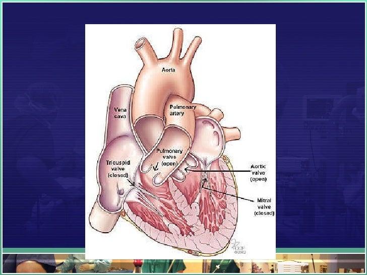 Rheumatic Heart Disease Slide 2
