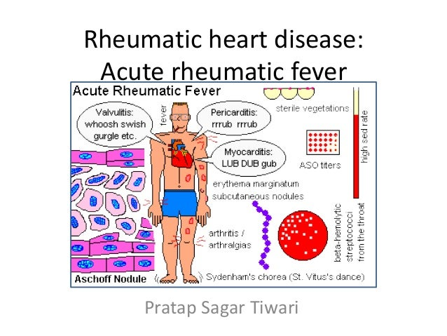 Acute rheumatic fever | The BMJ