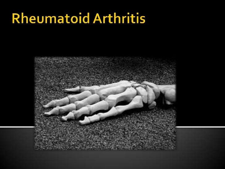 Rheumatoid Arthritis<br />