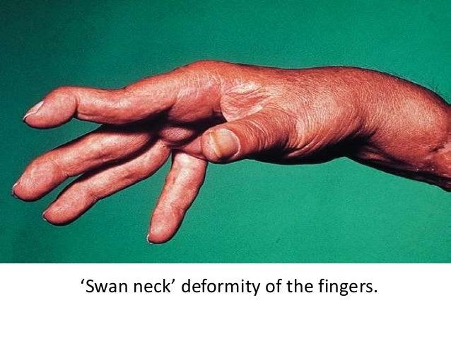 'Swan neck' deformity of the fingers.